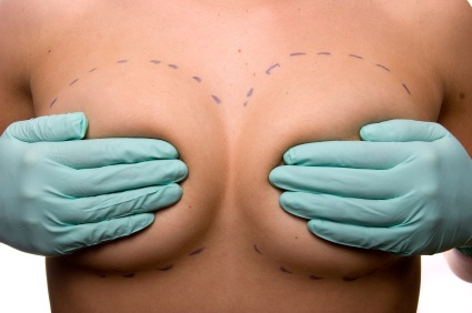 Lifting del seno (mastopessi)