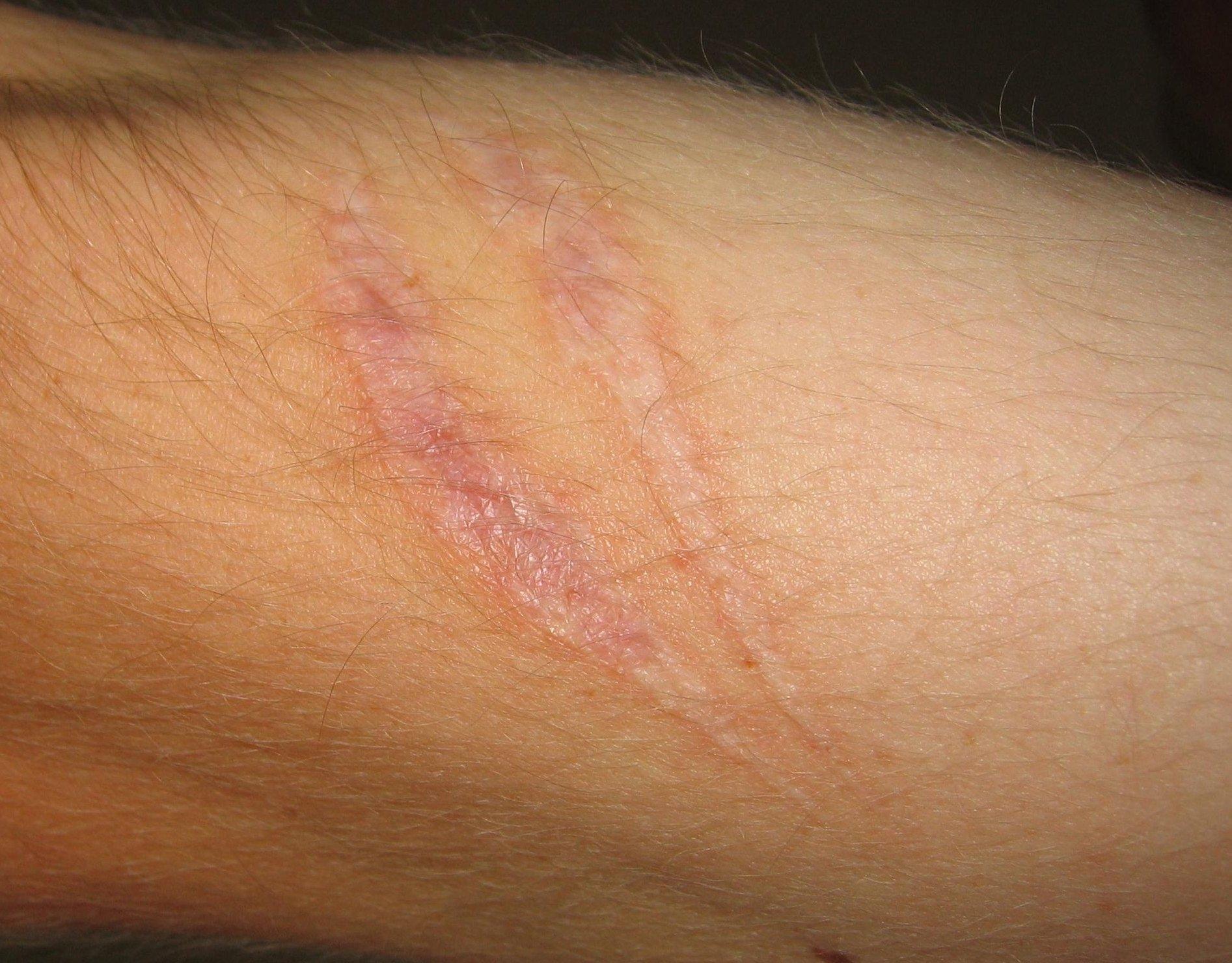 Cicatrici correggere per mente e corpo