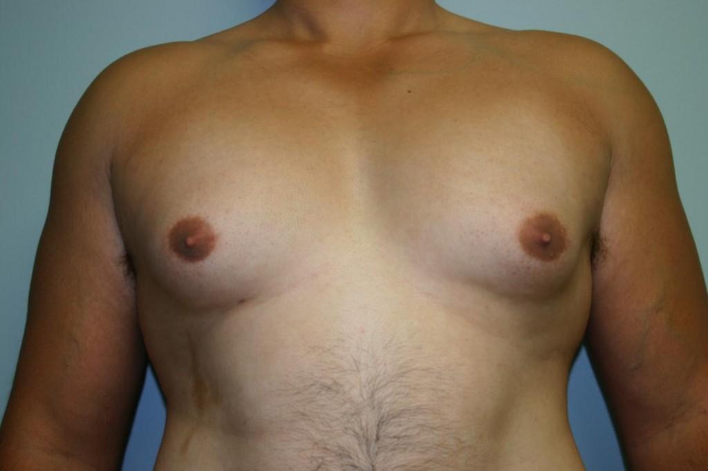 Correggere la ginecomastia