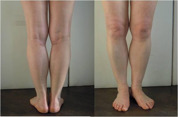 protesi-polpaccio-prima-dopo1