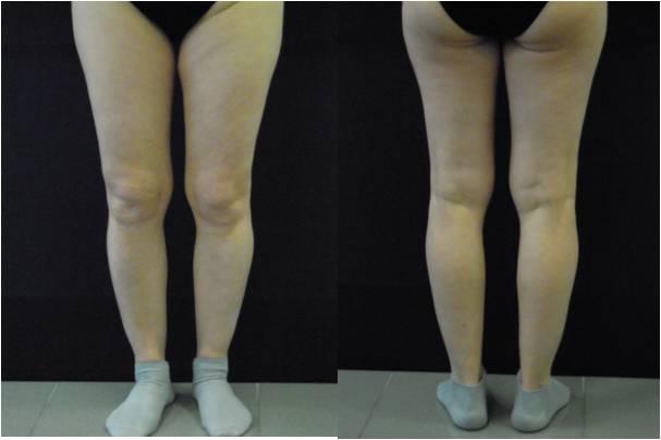 protesi-polpaccio-prima-dopo2